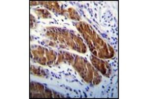 Immunohistochemistry (Paraffin-embedded Sections) (IHC (p)) image for anti-ATG5 antibody (ATG5 Autophagy Related 5 Homolog (S. Cerevisiae)) (ABIN1449606)
