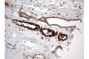 Image no. 5 for anti-Angiotensin I Converting Enzyme 2 (ACE2) (AA 18-237) antibody (ABIN2715650)