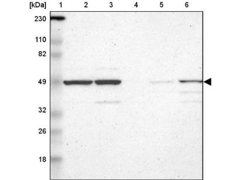 Western Blotting (WB) image for anti-RNA Binding Motif Protein 22 (RBM22) antibody (ABIN4349596)