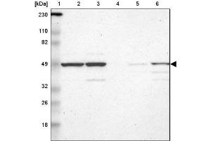 Western Blotting (WB) image for anti-RBM22 抗体 (RNA Binding Motif Protein 22) (ABIN4349596)