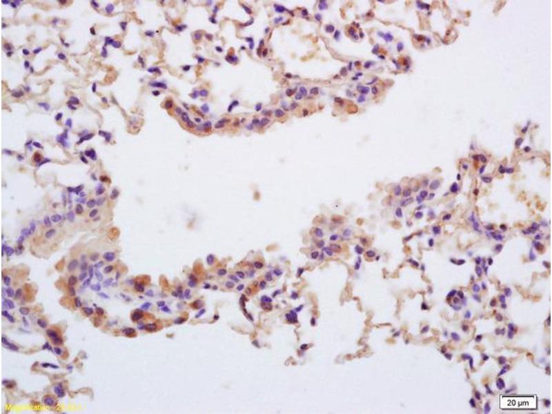 Immunohistochemistry (IHC) image for anti-TRKA antibody (Neurotrophic Tyrosine Kinase, Receptor, Type 1) (AA 480-520) (ABIN746603)