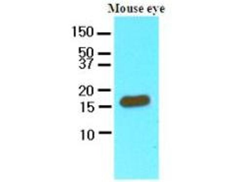 Western Blotting (WB) image for anti-Cellular Retinoic Acid Binding Protein 2 (CRABP2) (AA 1-138), (N-Term) antibody (ABIN356224)