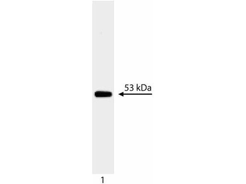 Western Blotting (WB) image for anti-p53 antibody (Tumor Protein P53) (AA 14-289) (ABIN967419)