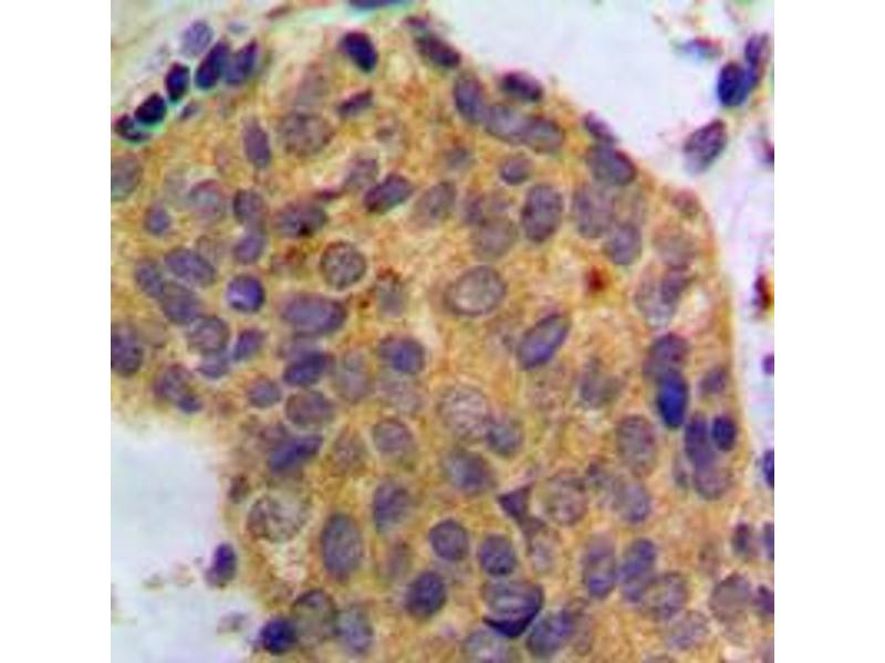 Immunohistochemistry (IHC) image for anti-Wingless-Type MMTV Integration Site Family, Member 1 (WNT1) (C-Term) antibody (ABIN2705330)