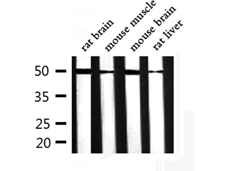 Western Blotting (WB) image for anti-alpha Tubulin (TUBA1) antibody (ABIN6269432)