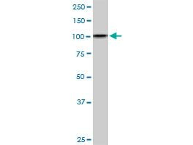 Western Blotting (WB) image for anti-DEAD/H (Asp-Glu-Ala-Asp/His) Box Polypeptide 11 (DDX11) (AA 1-970), (full length) antibody (ABIN514945)