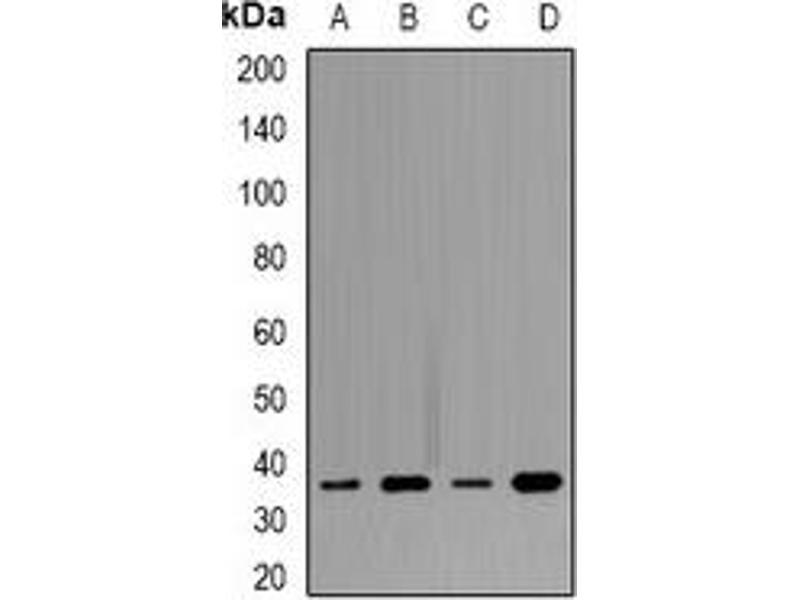 Western Blotting (WB) image for anti-Tropomyosin 1 (Alpha) (TPM1) antibody (ABIN3198357)