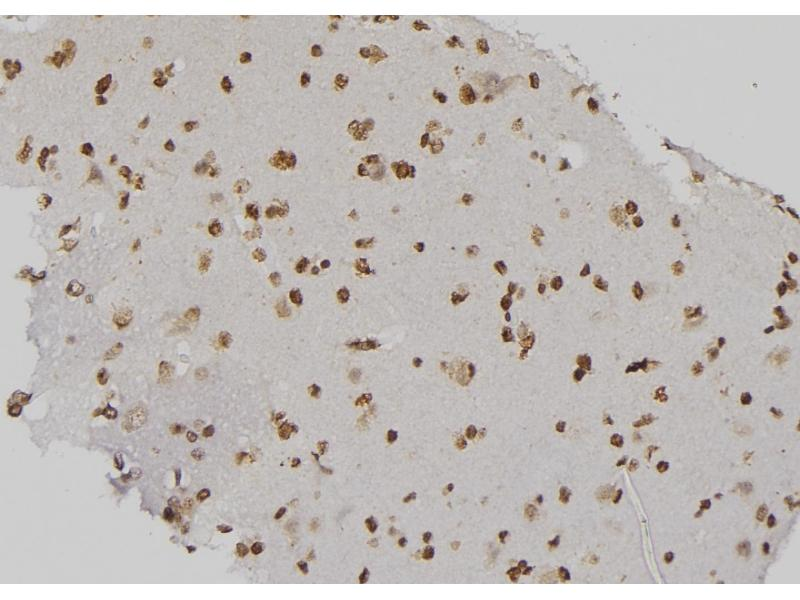 Image no. 2 for anti-CD79a Molecule, Immunoglobulin-Associated alpha (CD79A) (pTyr199) antibody (ABIN6269847)