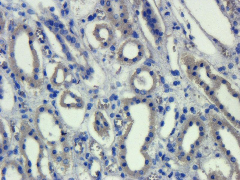 Immunohistochemistry (Paraffin-embedded Sections) (IHC (p)) image for anti-ROR2 antibody (Receptor Tyrosine Kinase-Like Orphan Receptor 2) (ABIN2506619)