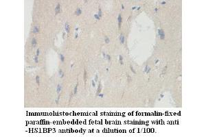 Image no. 1 for anti-HCLS1 Binding Protein 3 (HS1BP3) antibody (ABIN6584127)