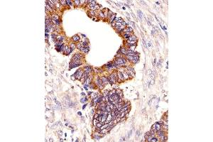 Image no. 1 for anti-Proprotein Convertase Subtilisin/kexin Type 9 (PCSK9) (AA 144-173), (N-Term) antibody (ABIN5531809)