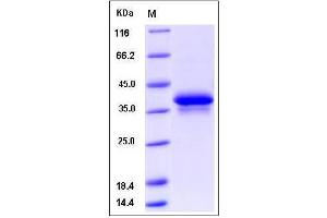 image for Neuregulin 1 (NRG1) (AA 177-241) (Active) protein (Fc Tag) (ABIN2005739)