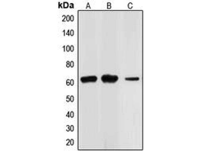 Western Blotting (WB) image for anti-Checkpoint Kinase 2 (CHEK2) (N-Term) antibody (ABIN2707424)
