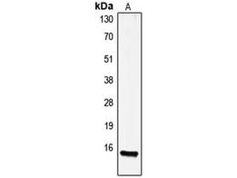 Western Blotting (WB) image for anti-Gastrin (GAST) (Center) antibody (ABIN2706210)