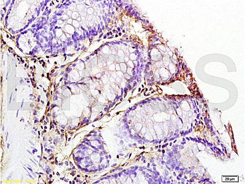 Immunohistochemistry (IHC) image for anti-IL1B antibody (Interleukin 1, beta) (AA 190-240) (ABIN872644)