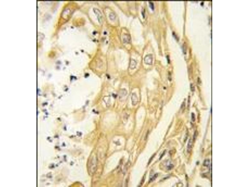 Immunohistochemistry (Paraffin-embedded Sections) (IHC (p)) image for anti-EPH Receptor B4 (EPHB4) antibody (ABIN359817)