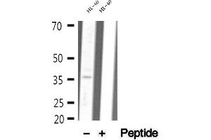 Image no. 1 for anti-Malate Dehydrogenase 1, NAD (Soluble) (MDH1) antibody (ABIN6263173)