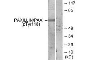 Western Blotting (WB) image for anti-Paxillin antibody (PXN) (pTyr118) (ABIN1531946)