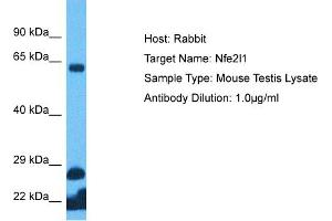 Image no. 1 for anti-Nuclear Factor (erythroid-Derived 2)-Like 1 (NFE2L1) (C-Term) antibody (ABIN2777227)