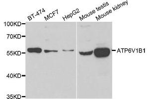 Western Blotting (WB) image for anti-ATPase, H+ Transporting, Lysosomal 56/58kDa, V1 Subunit B1 (ATP6V1B1) antibody (ABIN2561289)