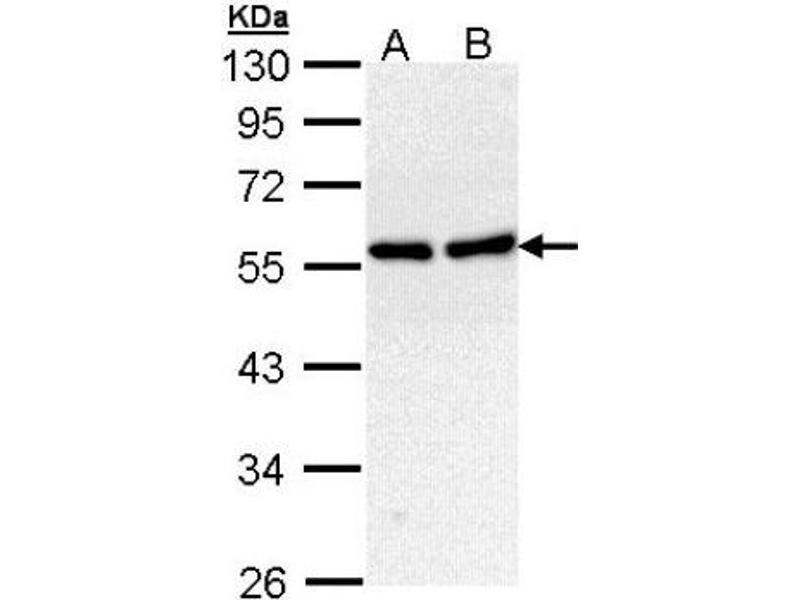 Western Blotting (WB) image for anti-CAMK2B antibody (Calcium/calmodulin-Dependent Protein Kinase (CaM Kinase) II beta) (Center) (ABIN4287585)