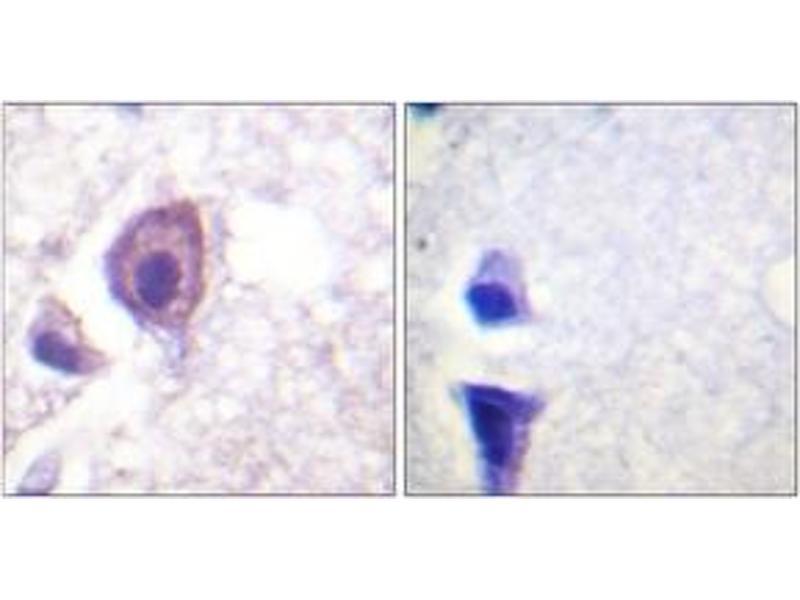 Immunohistochemistry (IHC) image for anti-CD4 Molecule (CD4) (AA 401-450) antibody (ABIN1527570)