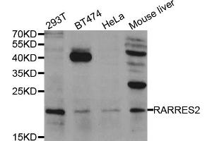 Image no. 1 for anti-Retinoic Acid Receptor Responder (Tazarotene Induced) 2 (RARRES2) antibody (ABIN6570813)