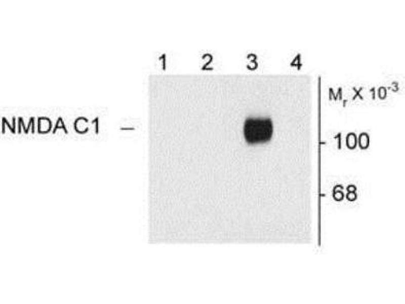 Western Blotting (WB) image for anti-NMDA Receptor 1 antibody (ABIN152464)