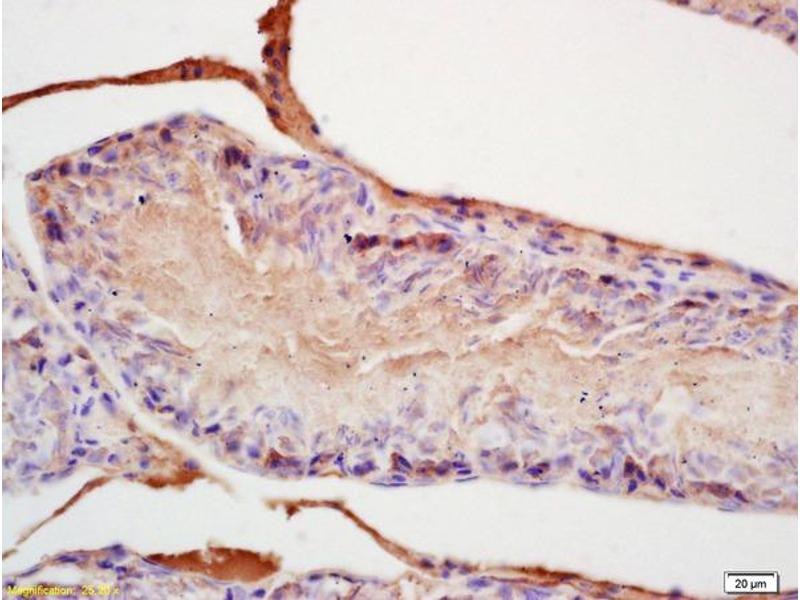 Immunohistochemistry (IHC) image for anti-Fibroblast Growth Factor 8 (Androgen-Induced) (FGF8) (AA 200-250) antibody (ABIN672516)