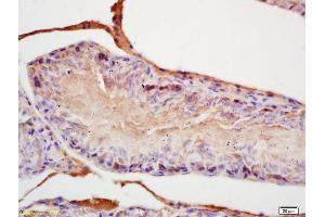 Immunohistochemistry (IHC) image for anti-FGF8 Antikörper (Fibroblast Growth Factor 8 (Androgen-Induced)) (AA 200-250) (ABIN672516)