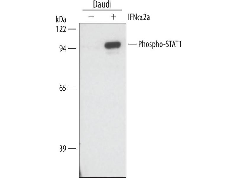Western Blotting (WB) image for anti-Signal Transducer and Activator of Transcription 1, 91kDa (STAT1) (pTyr701) antibody (ABIN4900633)