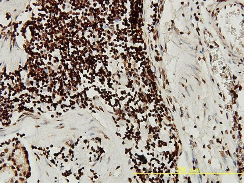 Immunohistochemistry (IHC) image for anti-serum/glucocorticoid Regulated Kinase 1 (SGK1) (AA 1-432) antibody (ABIN393791)