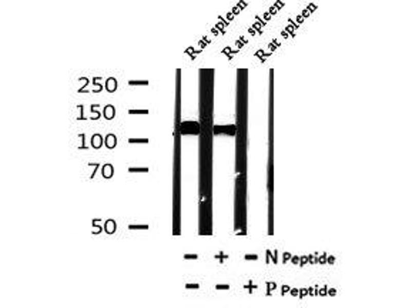 Image no. 4 for anti-Unc-51 Like Kinase 1 (C. Elegans) (ULK1) (pSer131) antibody (ABIN6269709)