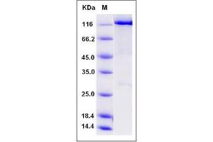 Image no. 1 for WW Domain Containing E3 Ubiquitin Protein Ligase 2 (WWP2) (AA 1-870) protein (GST tag,His tag) (ABIN2650322)