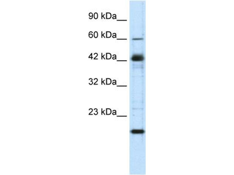 Western Blotting (WB) image for anti-Zinc Finger Protein 24 (ZNF24) (Middle Region) antibody (ABIN182823)