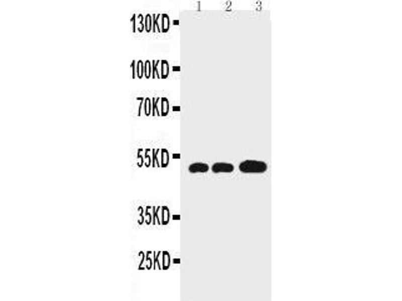 Western Blotting (WB) image for anti-Glial Fibrillary Acidic Protein (GFAP) (AA 417-432), (C-Term) antibody (ABIN3044350)