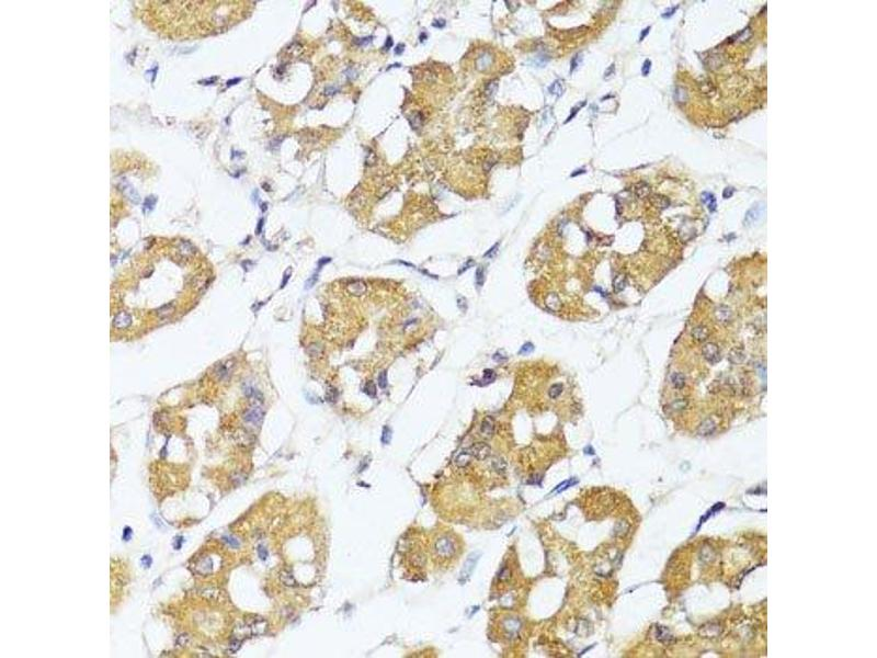 Immunohistochemistry (Paraffin-embedded Sections) (IHC (p)) image for anti-Interferon Regulatory Factor 3 (IRF3) antibody (ABIN5663780)