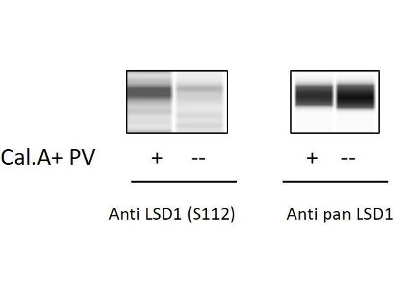 Image no. 2 for Lysine (K)-Specific Demethylase 1A (KDM1A) ELISA Kit (ABIN6730575)