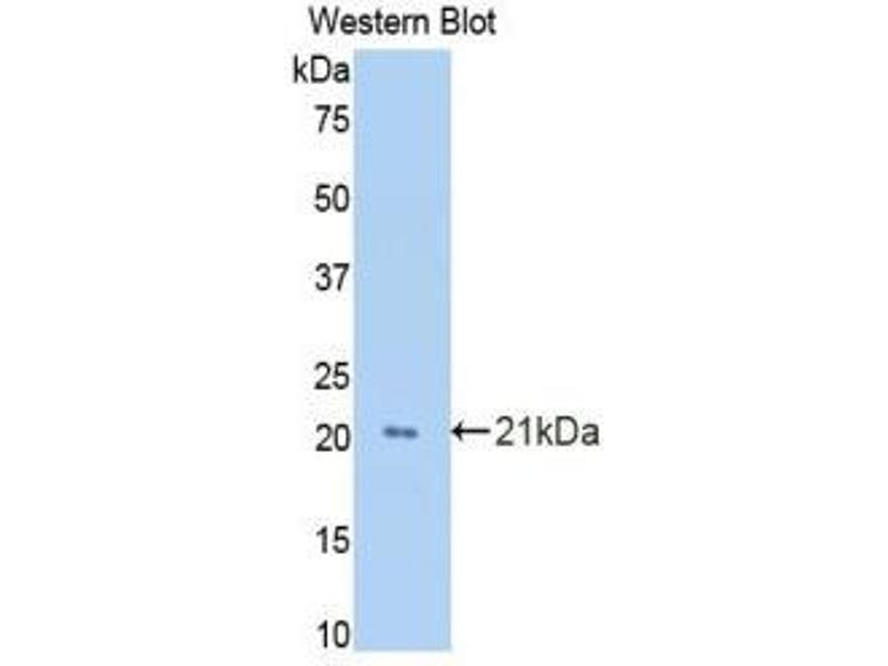 Western Blotting (WB) image for anti-Growth Arrest-Specific 6 (GAS6) (AA 356-511) antibody (ABIN1858964)