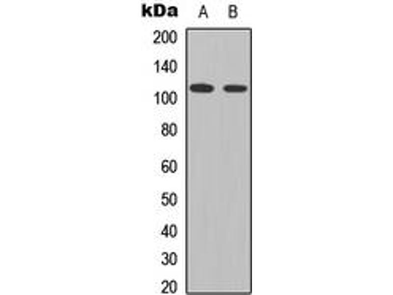 Western Blotting (WB) image for anti-Signal Transducer and Activator of Transcription 2, 113kDa (STAT2) (C-Term), (pTyr690) antibody (ABIN2705257)