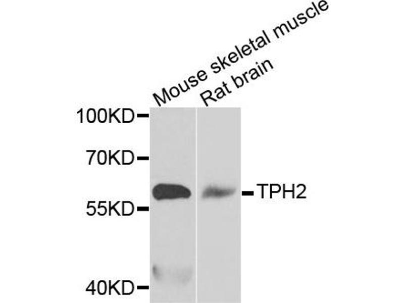 Image no. 1 for anti-Tryptophan Hydroxylase 2 (TPH2) antibody (ABIN2560507)