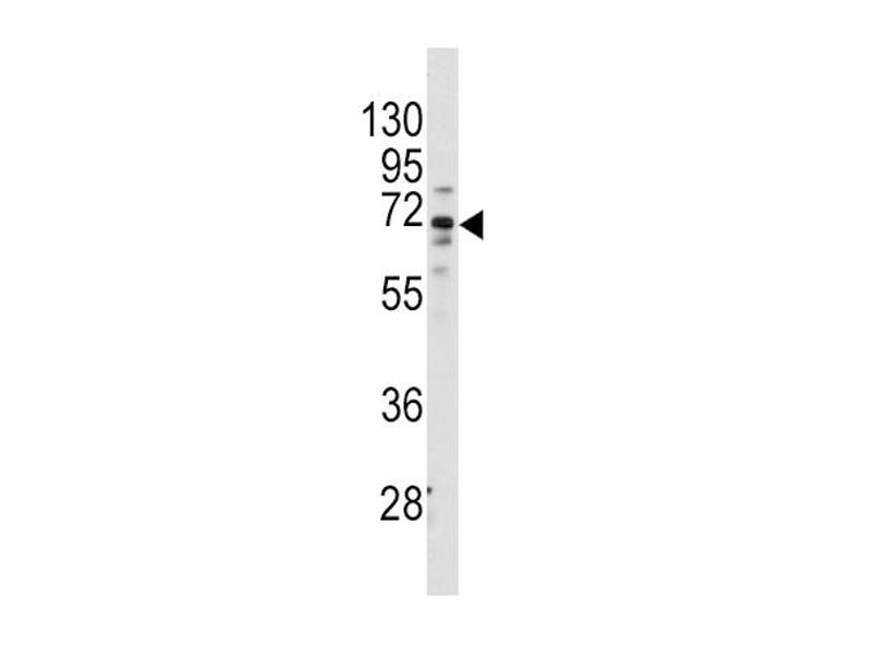 Western Blotting (WB) image for anti-FZD1 antibody (Frizzled Family Receptor 1) (ABIN2437187)