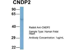 Image no. 2 for anti-CNDP Dipeptidase 2 (Metallopeptidase M20 Family) (CNDP2) (Middle Region) antibody (ABIN2787096)