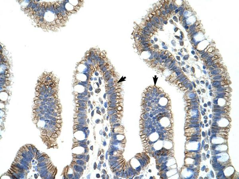 Immunohistochemistry (IHC) image for anti-Catenin (Cadherin-Associated Protein), beta 1, 88kDa (CTNNB1) (C-Term) antibody (ABIN2792303)