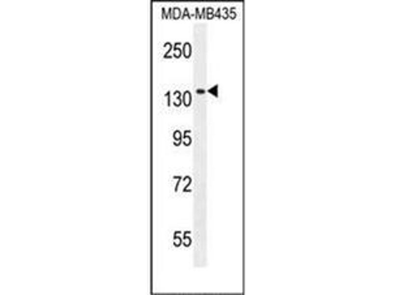 Western Blotting (WB) image for anti-NMDAR2A antibody (Glutamate Receptor, Ionotropic, N-Methyl D-Aspartate 2a) (AA 1298-1326) (ABIN953719)