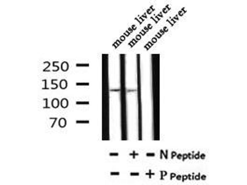 Image no. 1 for anti-ATP-Binding Cassette, Sub-Family B (MDR/TAP), Member 11 (ABCB11) (pSer690) antibody (ABIN6269603)