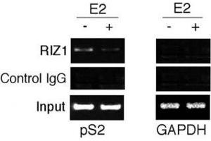 Image no. 3 for anti-PR Domain Containing 2, with ZNF Domain (PRDM2) (AA 1-347) antibody (ABIN3032300)