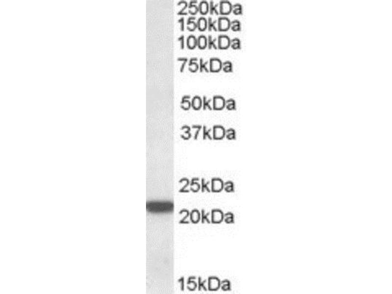 Western Blotting (WB) image for anti-Proteasome (Prosome, Macropain) Subunit, beta Type, 8 (Large Multifunctional Peptidase 7) (PSMB8) (both Isoforms), (C-Term) antibody (ABIN4331261)