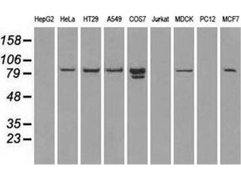 Western Blotting (WB) image for anti-STAT1 antibody (Signal Transducer and Activator of Transcription 1, 91kDa) (ABIN2452290)