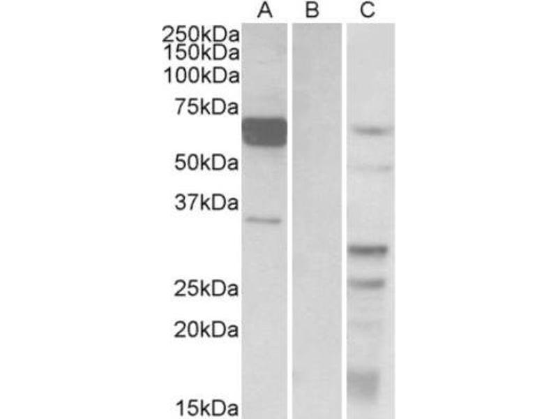 Western Blotting (WB) image for anti-Interferon Regulatory Factor 5 (IRF5) (all Isoforms), (C-Term) antibody (ABIN249633)
